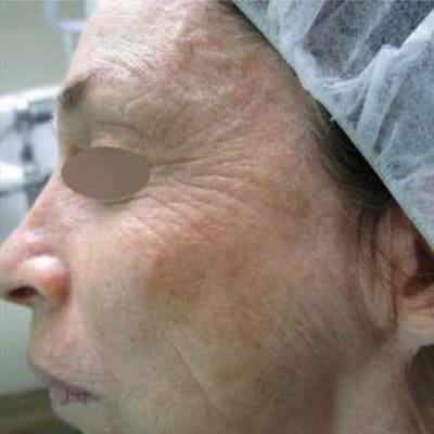 Hautverjüngung